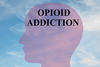 How opioid use can lead to addiction